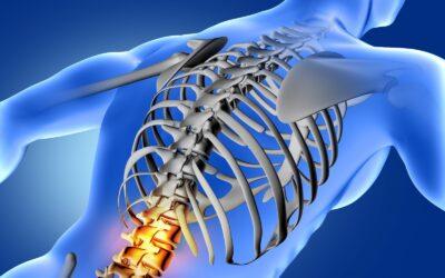 Sai quali sono le cause e le terapie efficaci per la lombalgia cronica?